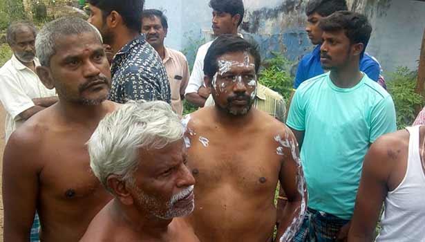 ரவுடி ஆசிட் வீசியதில் காயம் அடைந்த பொதுமக்கள்
